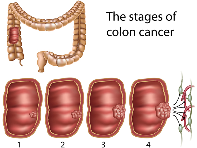 Colorectal Colon Cancer Screening Texarkana Gastroenterology